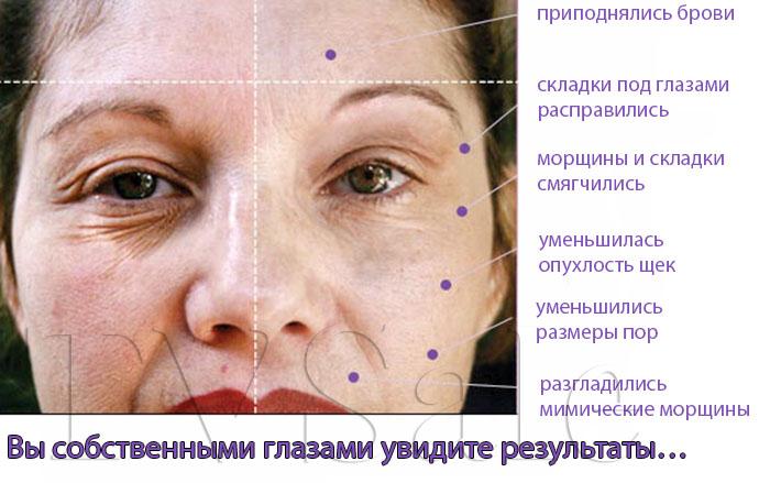 Прибор для ухода за лицом Дерма Ванд: области воздействия на лице